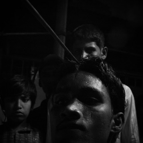 Inserting a rod in the head -Mohammad Rafaee by firoze shakir photographerno1