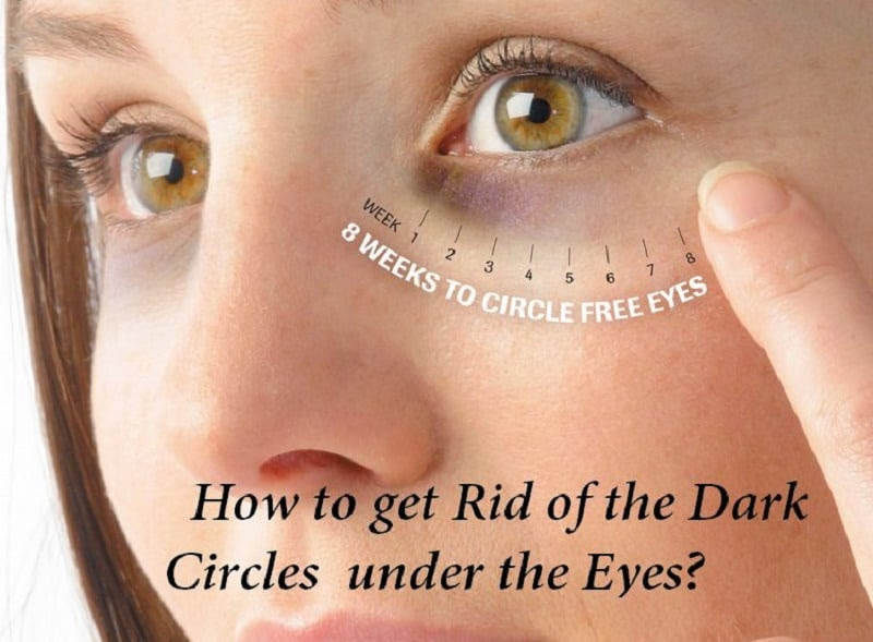 How to get Rid of the Dark Circles under the Eyes? : Human ...