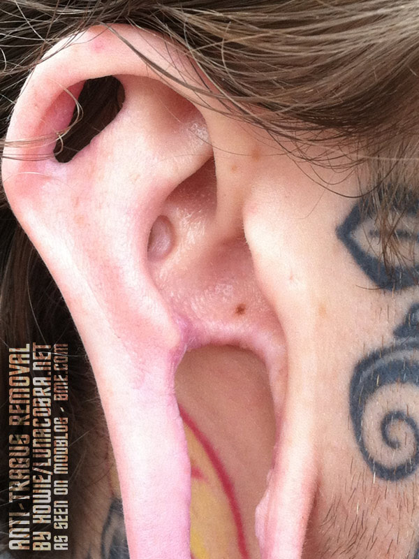 Anti Tragus Removal Bme Tattoo Piercing And Body Modification News