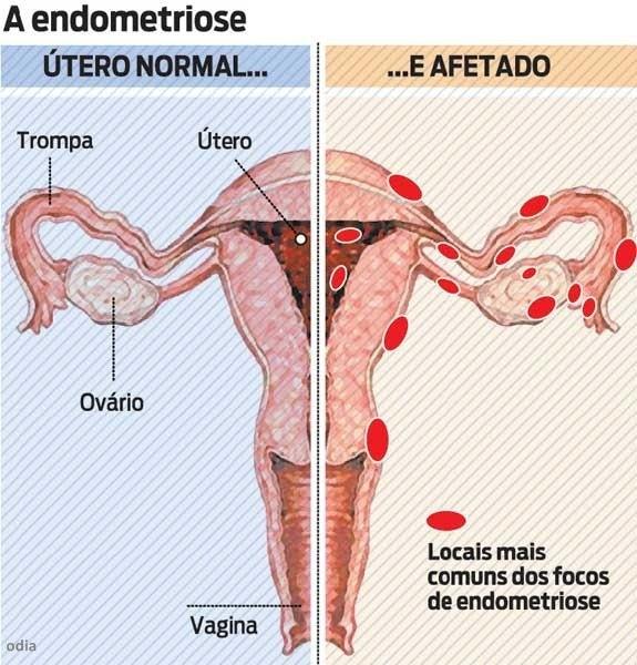 Ser mulher padecer no paraso Pergunte a uma portadora de endometriose