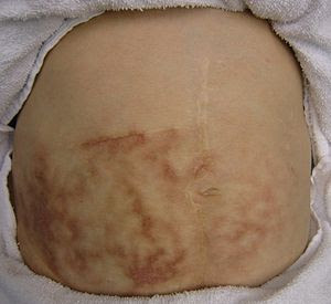 English: Hot bottle rash in a person with chro...