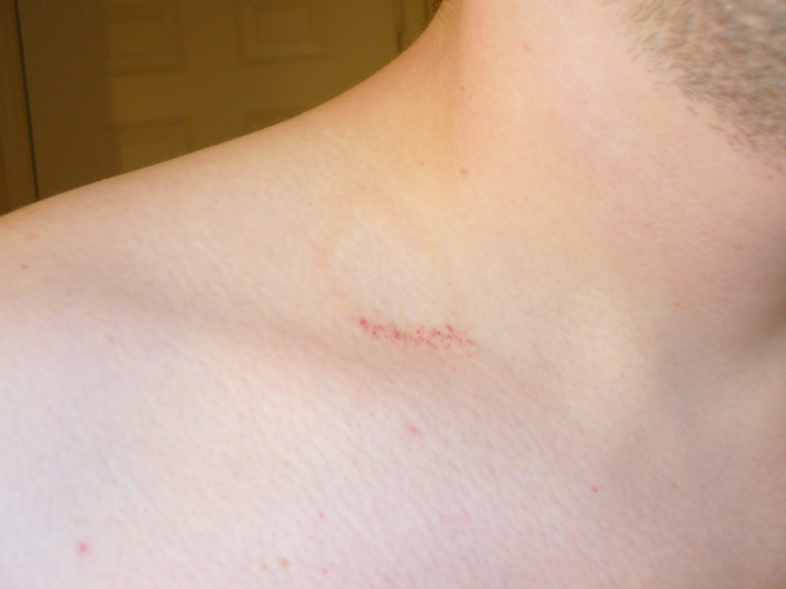 Mount And Blade: Rashes That Look Like Hickeys