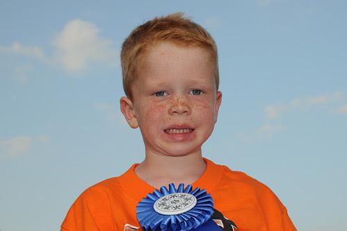freckle contest winner_6920 web