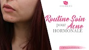 Routine SOIN pour traiter l'acné HORMONALE