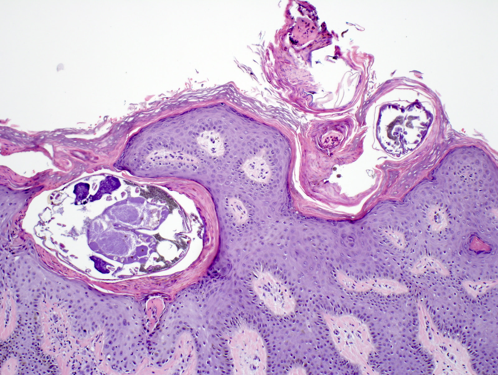 Scabies Histology