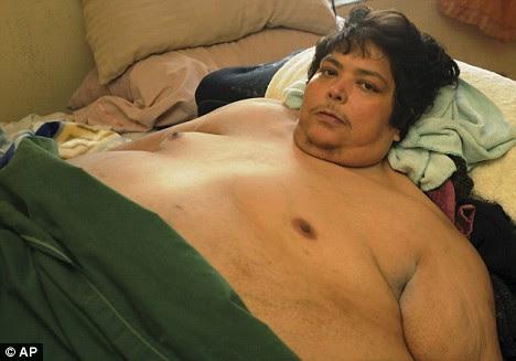 Jose Luis Garza, a 450kg Mexican man