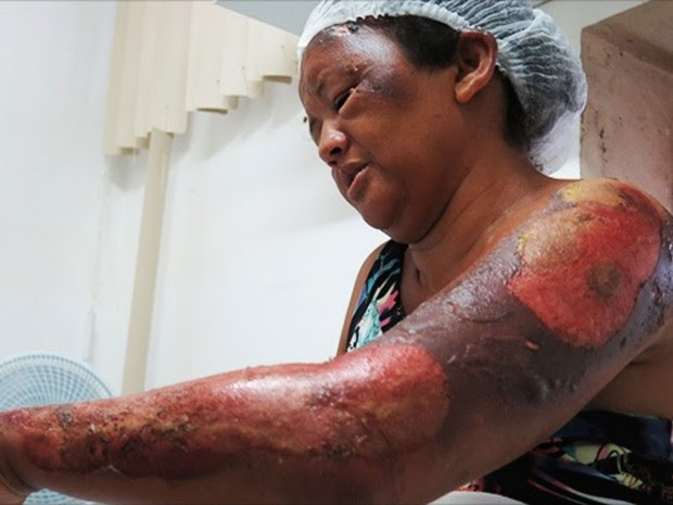 Deuzilene da Silva teve queimaduras pelo corpo em atentado em Mossoró (Foto: Josemário Alves/Mossoró Hoje)