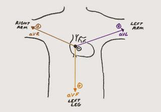 Hunting the Culprit: (Properly) Understanding ECG Leads - Ponder Med