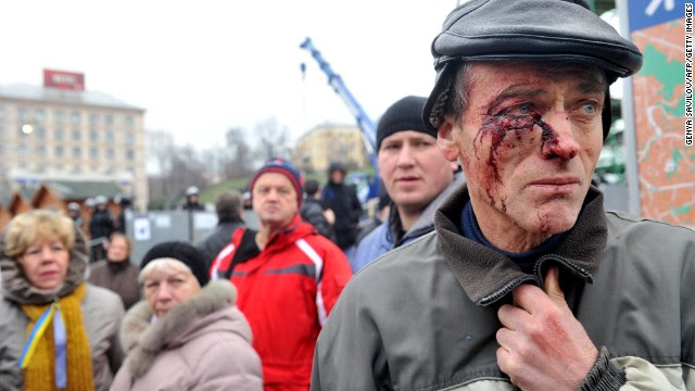 A protester injured in clash with police stands on Independence Square in Kiev, Ukraine, on Saturday, November 30. Protesters gathered in the main square to protest the government's decision not to sign a landmark trade deal with the European Union.