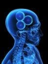 X-ray gears