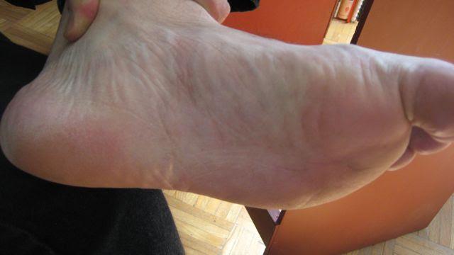 eczema: Dyshidrotic Eczema Blisters On Feet