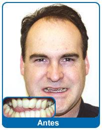 antes-e-depois-aparelho-dentario-1