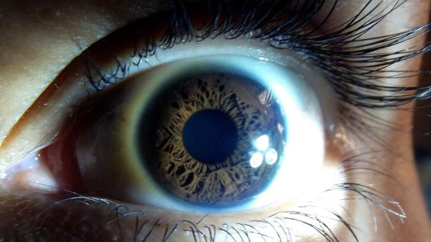 Image result for fatal insomnia prion
