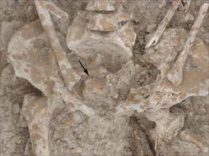 esqueleto romano con tumor