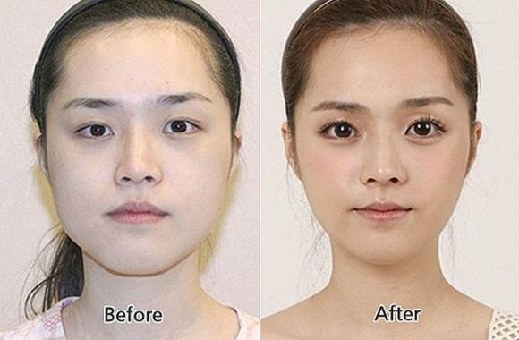 Mengejutkan! Foto Sebelum dan Sesudah Orang Korea Operasi ...