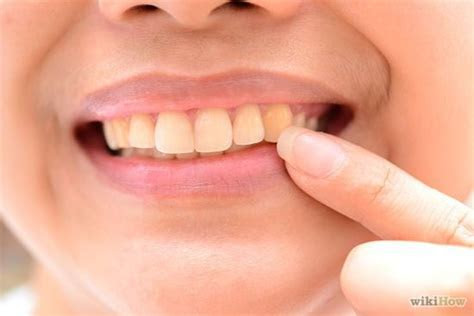 Restore Tooth Enamel   Http://www.jennisonbeautysupply.com