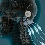 Des tuyaux dans le cerveau pour lutter contre la maladie de Parkinson - Maxisciences