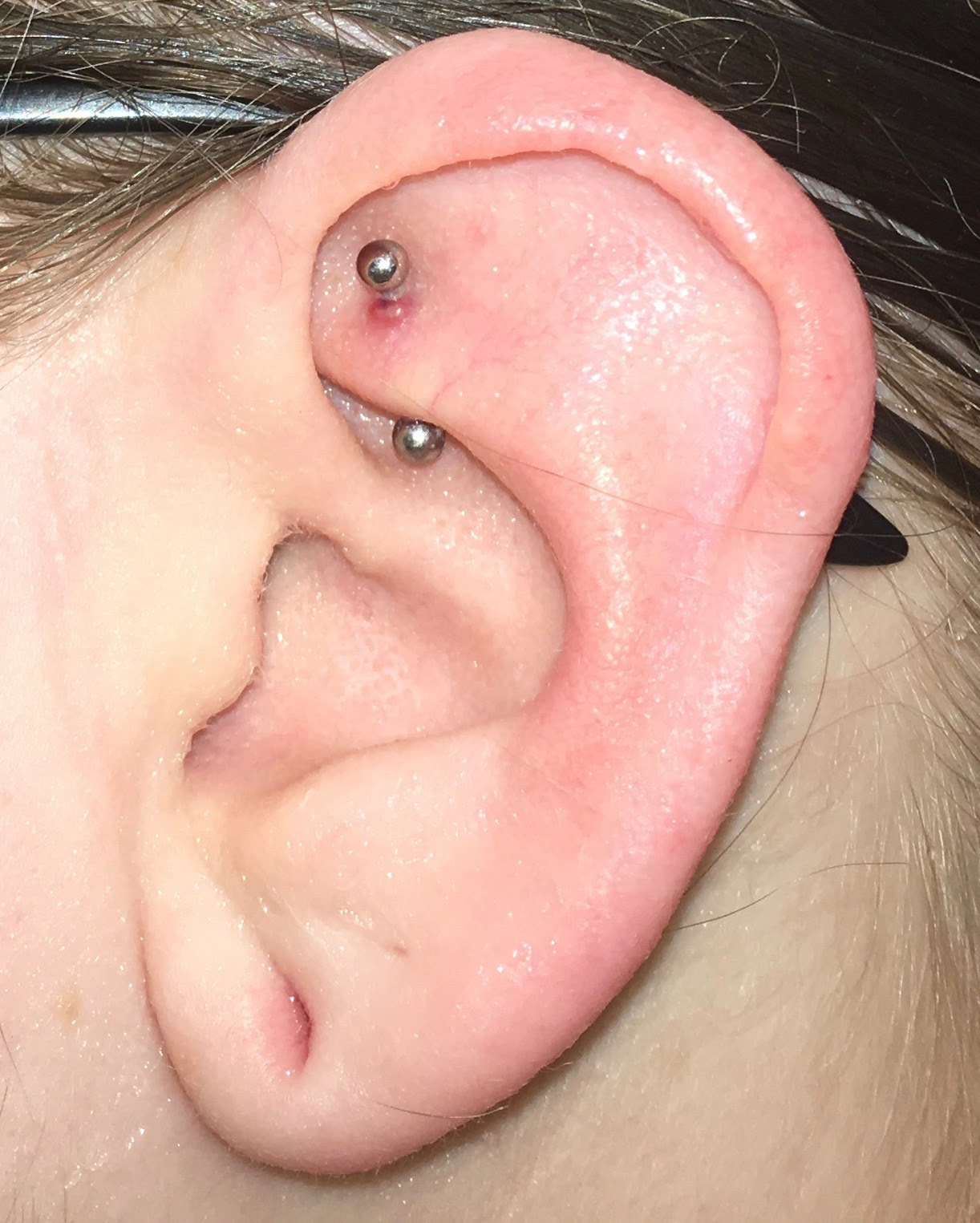 Irritation Bump On Month Old Rook Piercing