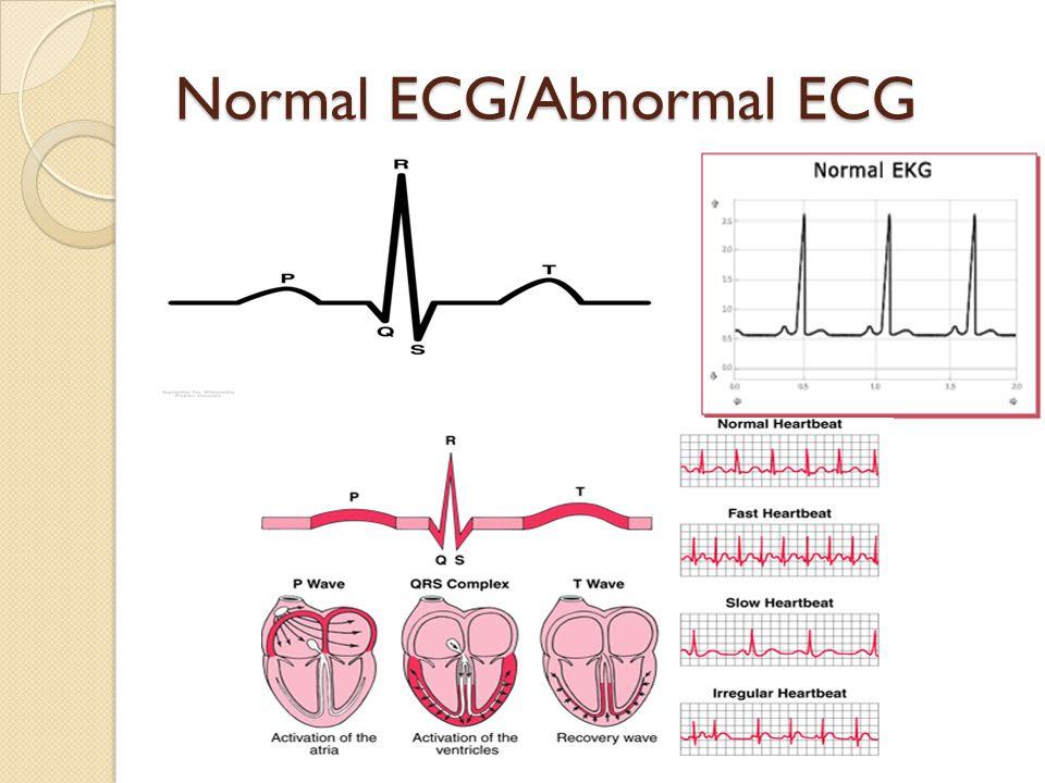 Normal+ECG%2FAbnormal+ECG