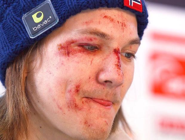 Tom Hilde após queda na prova de salto em esqui (Foto: Reuters)
