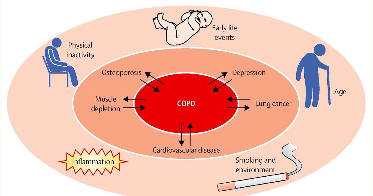 Copd Similar Diseases - Perokok f