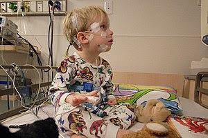 Pediatric polysomnography patient, Children's ...