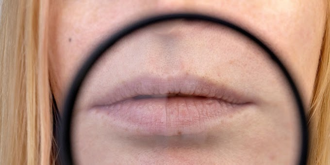 How to get rid of Chapped Lips: Do's & Don'ts