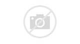 The Injury Of Messi Pictures