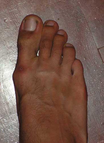Косточки на ногах лечение без операции