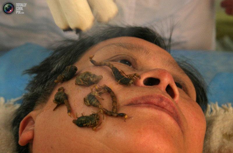 Metodos de cura muito bizarros 05