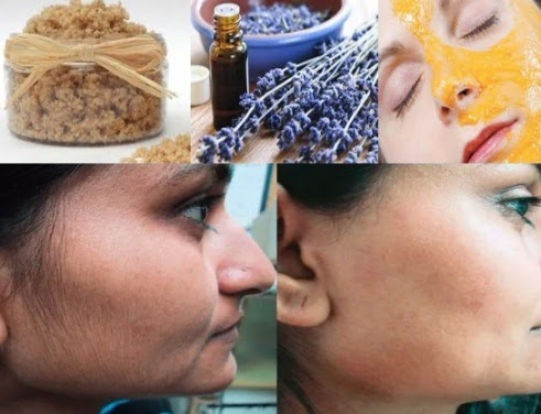 Natural remedies for unwanted facial hair