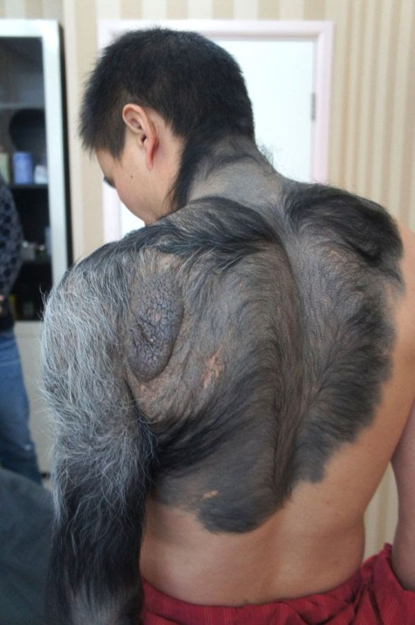 Real Life Werewolf (6 pics)
