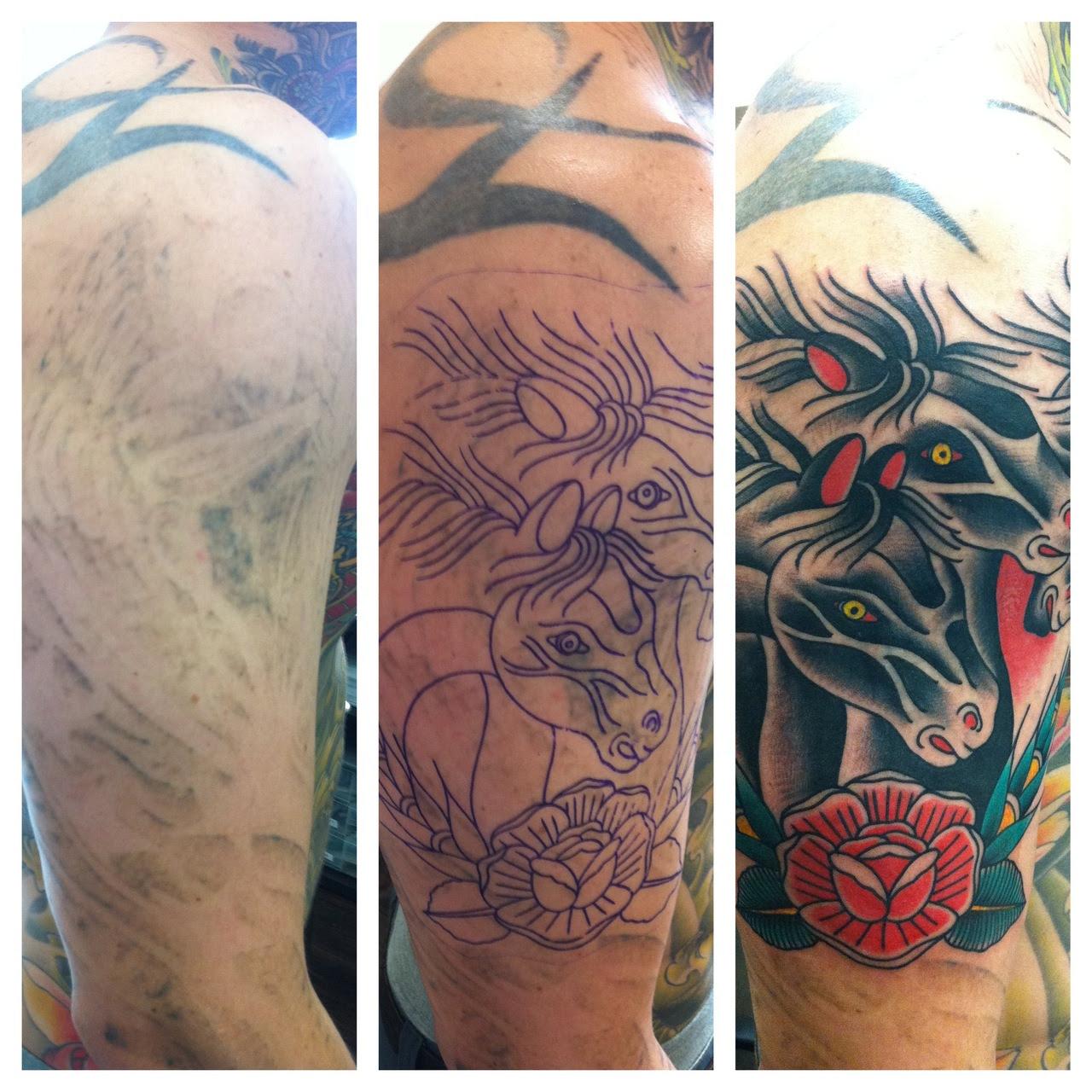 Cómo Quitar Un Tatuaje Con Láser