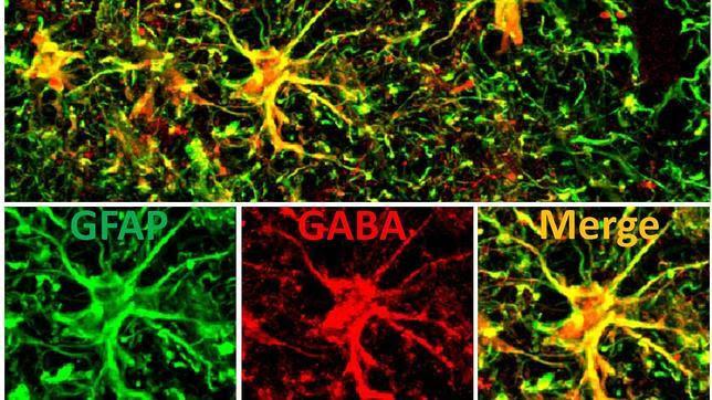 El tratamiento del alzhéimer busca nuevas dianas farmacológicas