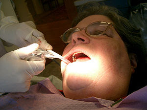 A w:Dental hygienist attends to a patient.