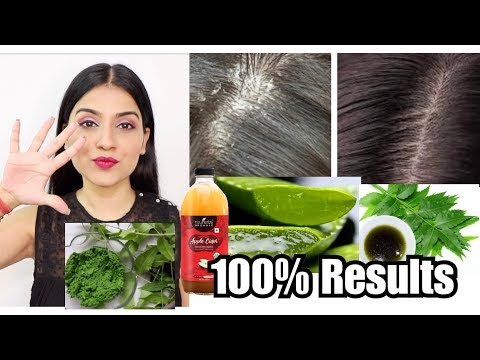 *Tried & Tested* 5 Natural & Easy Ways To Remove Dandruff   Maintenance of Seborrheic Dermatitis