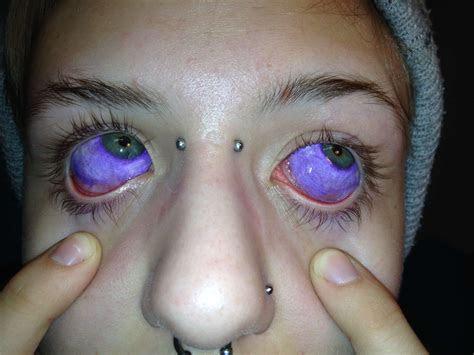 eyeball tattoo beware trend usa micro