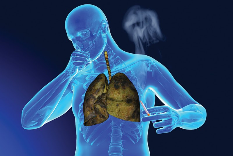Forms Of Tobacco That Give You Cancer