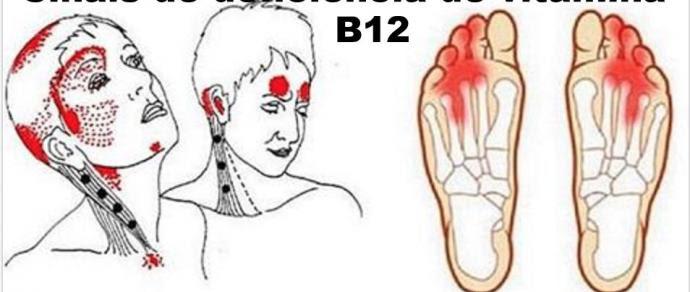 Resultado de imagem para Estes são os sinais de deficiência da vitamina B12, a ameaça silenciosa que pode destruir seu cérebro!