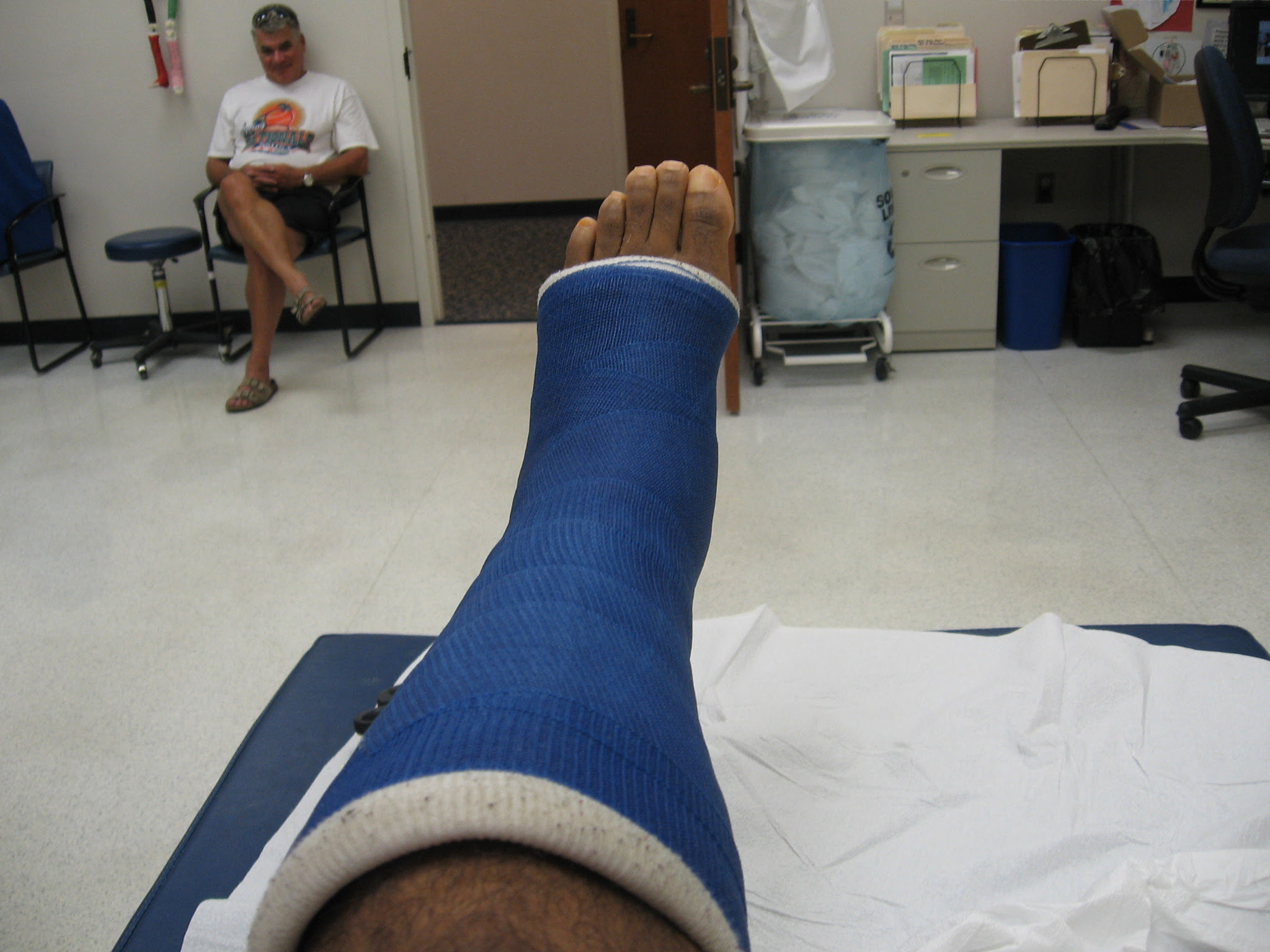 My Achilles Story 14 Days And One Cast Down