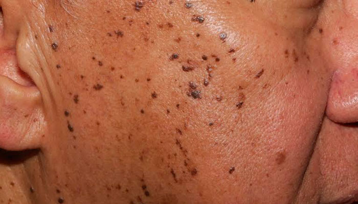 Got Mystery, Wart-Like Growths? They May Be Seborrheic ...