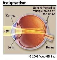 Astigmatism2