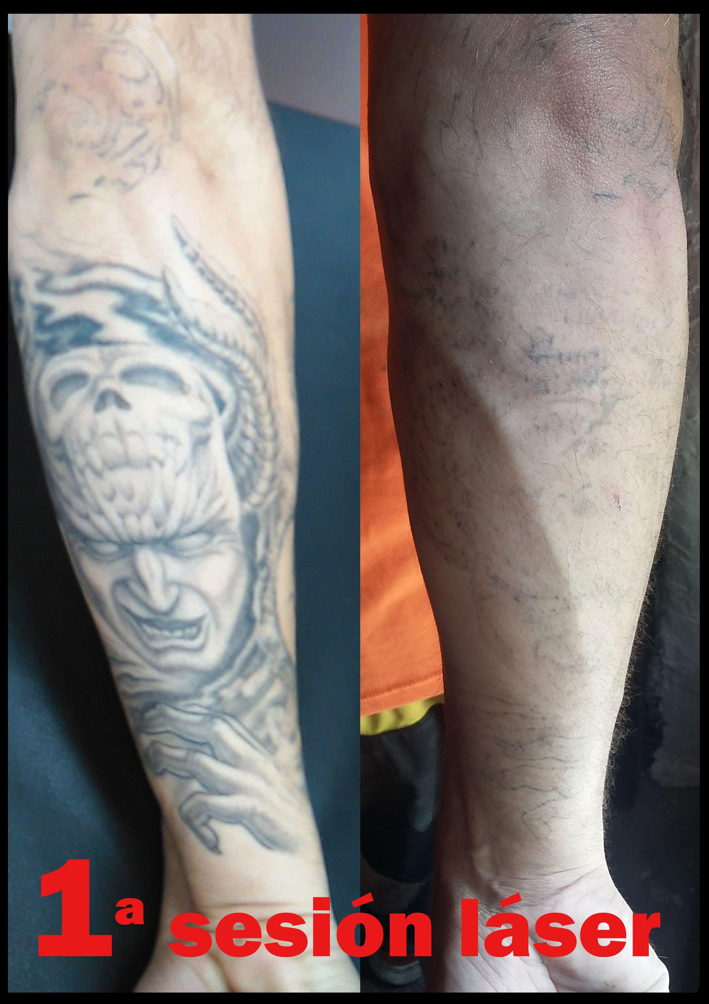 Tatuajes Borrados Con Laser Antes Y Despues