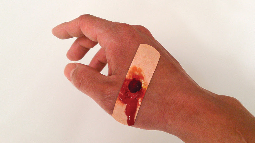 boo-boos, the bandaid that hurts to look at, by sherwood forlee
