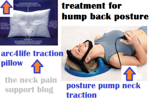 Is it possible to get rid of the hump on my neck? by NeckPainRelief