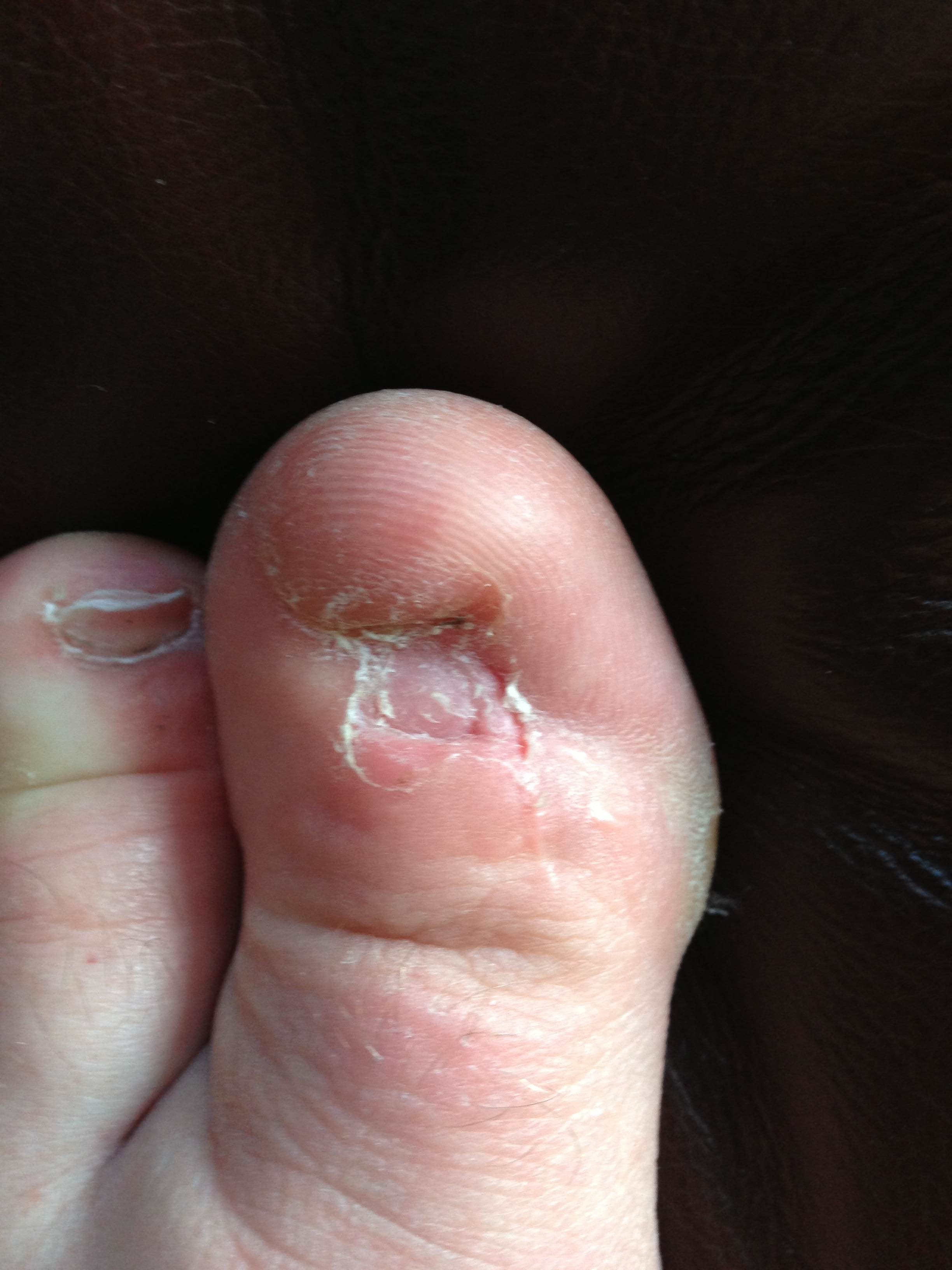 What it looks like to have no toe nails : WTF