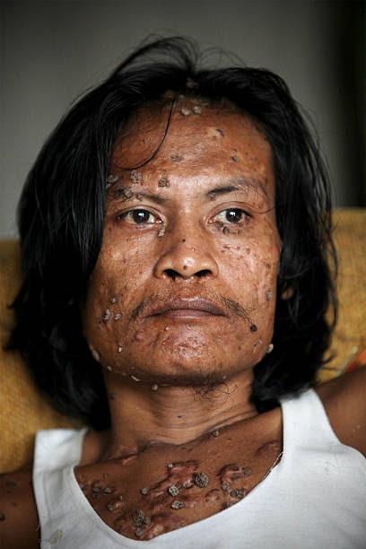 デデ コサワ の写真 画像 Id 94466840 Indonesian Tree Man