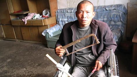 """Zheng Yanliang, de 47 anos, começou a sentir fortes dores nas pernas em janeiro de 2011, de acordo com reportagem do """"Huffington Post""""   Foto: Reprodução"""