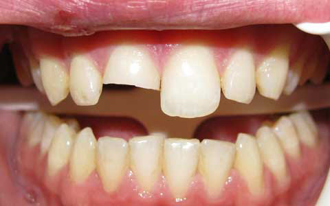 how to fix teeth gaps at home