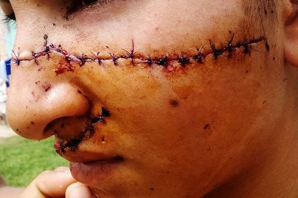 Julia Alvarez needed dozens stitches on her back and her face after the attack